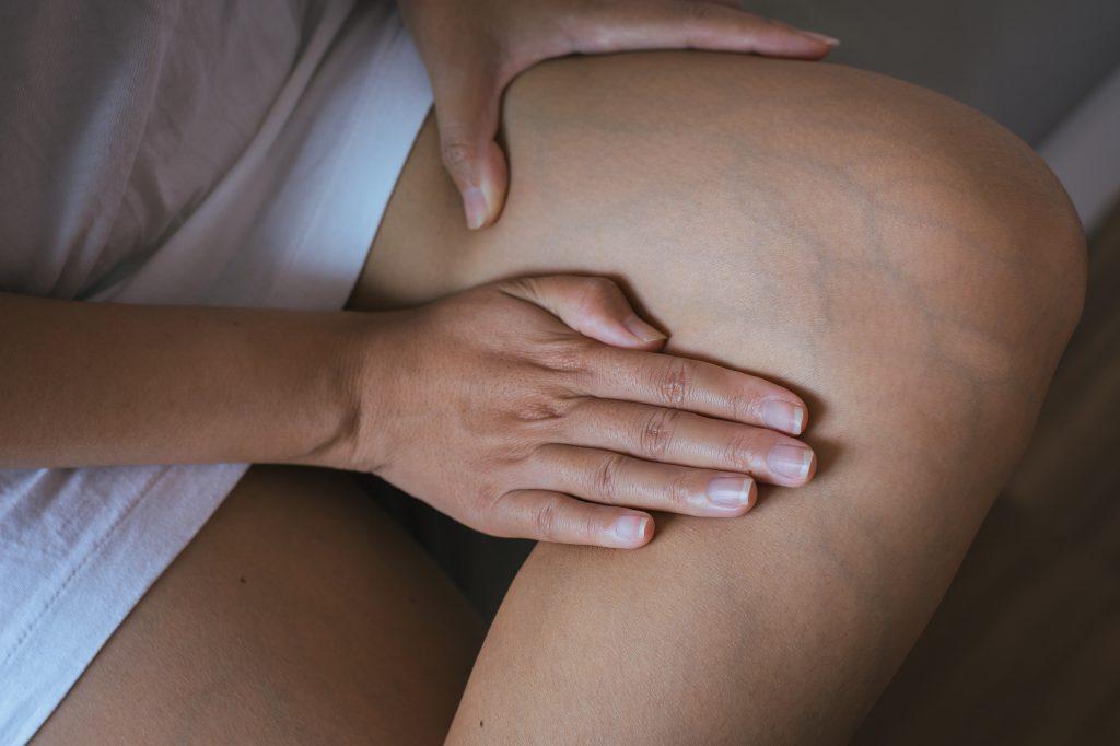 Spataders behandelen sclerotherapie gent